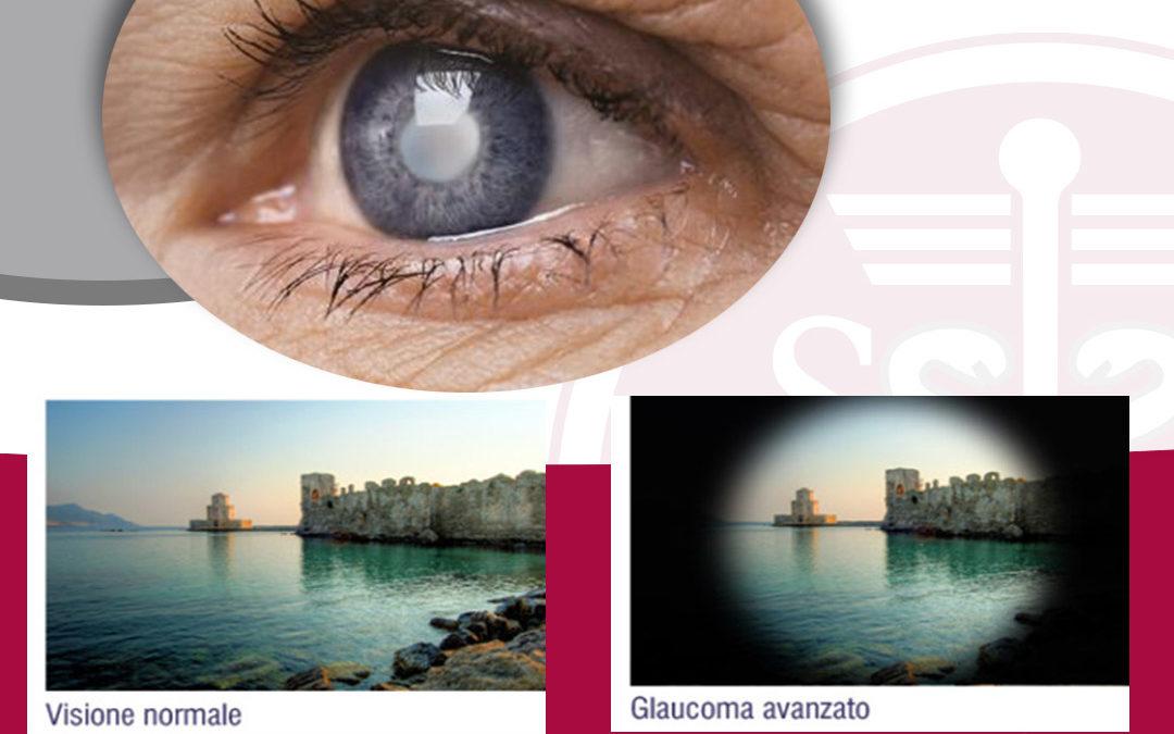 """Glaucoma. Difenditi dal """"ladro silenzioso della vista""""!"""